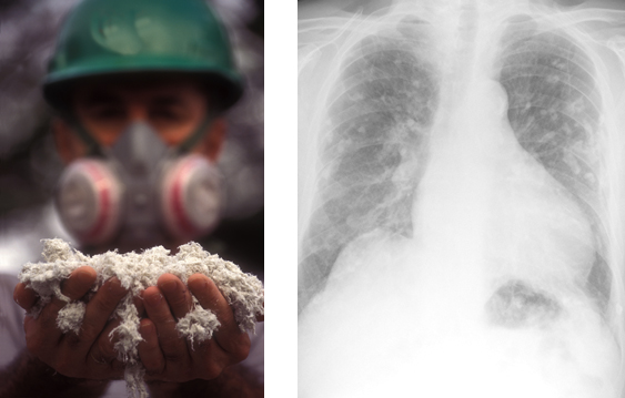 Dustcontrol's article series about the danger with asbestos